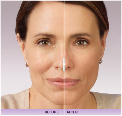 Before and after of juvederm treatment