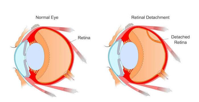 diagram of retinal detachment