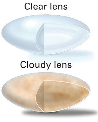 Clear Lens vs Cloudy Lens